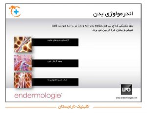 اندرمولوژی LPG برای بدن