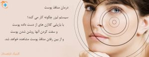 جوان سازی و کاهش منافذ پوست