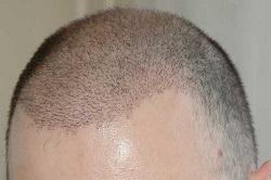 توصیه های لازم پس از انجام کاشت مو
