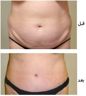 جراحی زیبایی شکم(ابدومینوپلاستی)