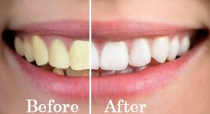 مراقبت های دندان، دندان پزشکی نارنجستان، جرم گیری، مسواک زدن، نگهداری از دندان، نخ دندان
