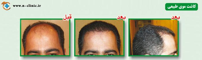 کاشت موی طبیعی، درصد تضمینی