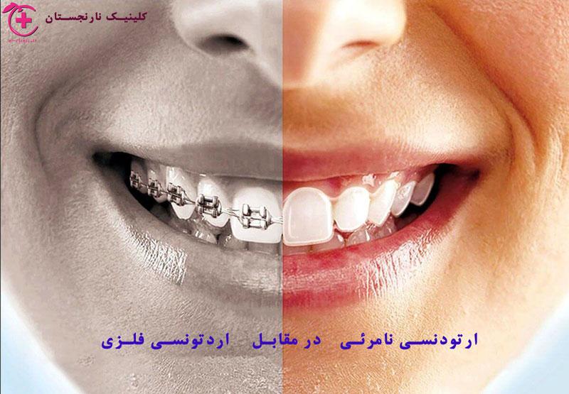 ارتودنسی ، سیم کشی دندان