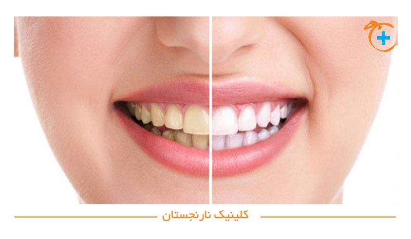 چگونه دندان ها زرد می شوند