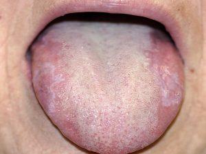 تورم یا سفید شدن زبان