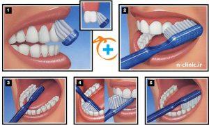 درمان دندان درد - نارنجستان - مسواک زدن - درمان ریشه - پوسیدگی دندان