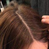 سفیدی مو - پیشگیری و درمان - کلینیک نارنجستان