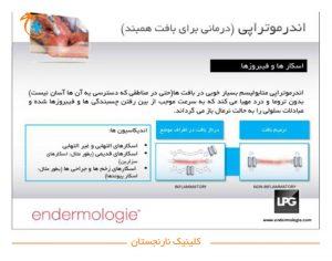 درمانی برای بافت همبند