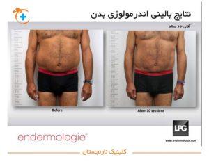 نتایج اندرمولوژی بدن