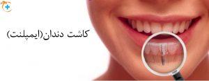 کاشت دندان ایمپلنت در پاسداران