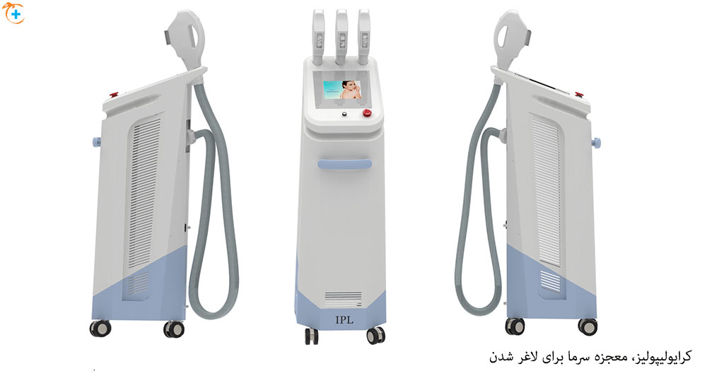 کرایولیپولیز، دستگاه لاغری موضعی