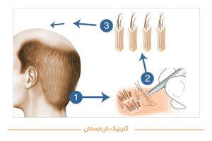 کاشت مو به روش BHT