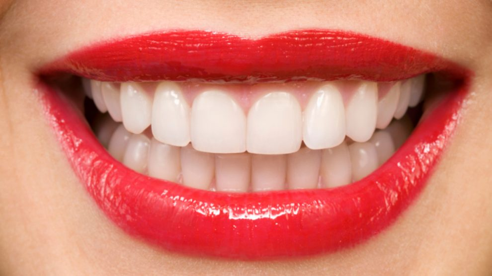 سفید کردن دندان